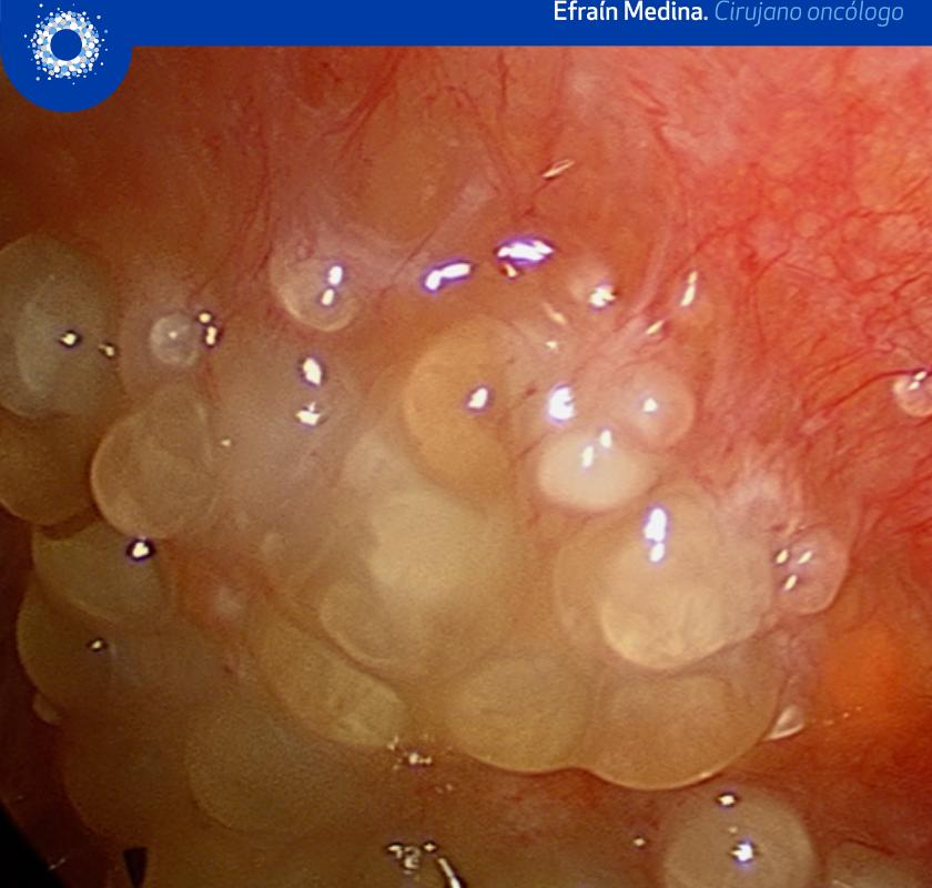 Cáncer de peritoneo
