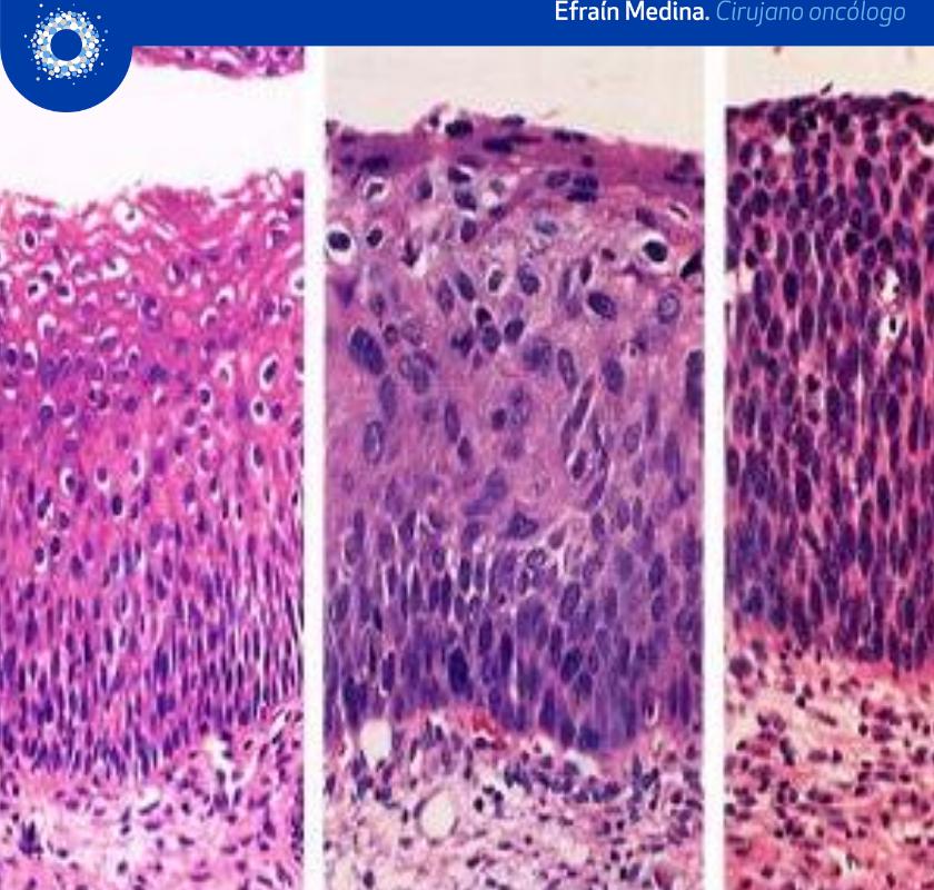 Video Neoplasia Intraepitelial Cervical NIC