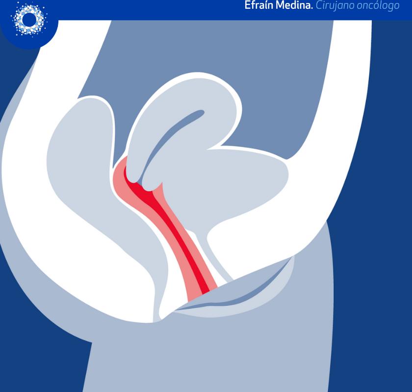 Neoplasia intraepitelial vaginal NIVa (Video)